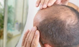 Best Hair Regrowth Oil For Baldness