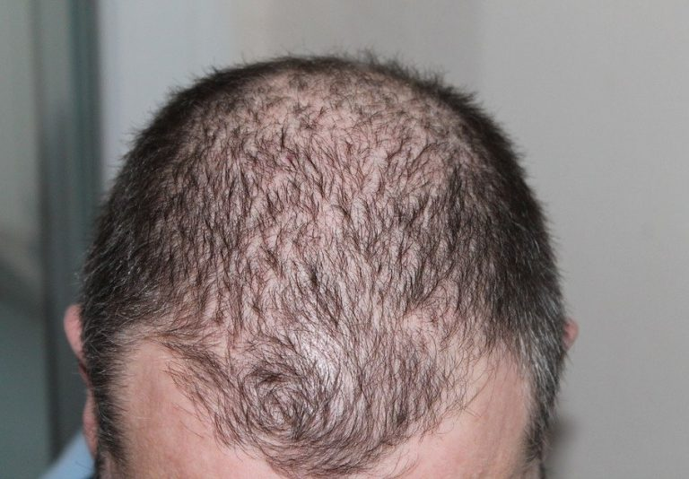 Best Natural Remedy For Hair Loss